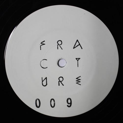 OMBOSSA | ZI (Fracture) - EP